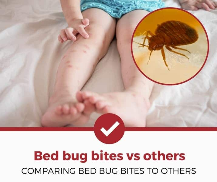 bed bug bites vs other bug bites