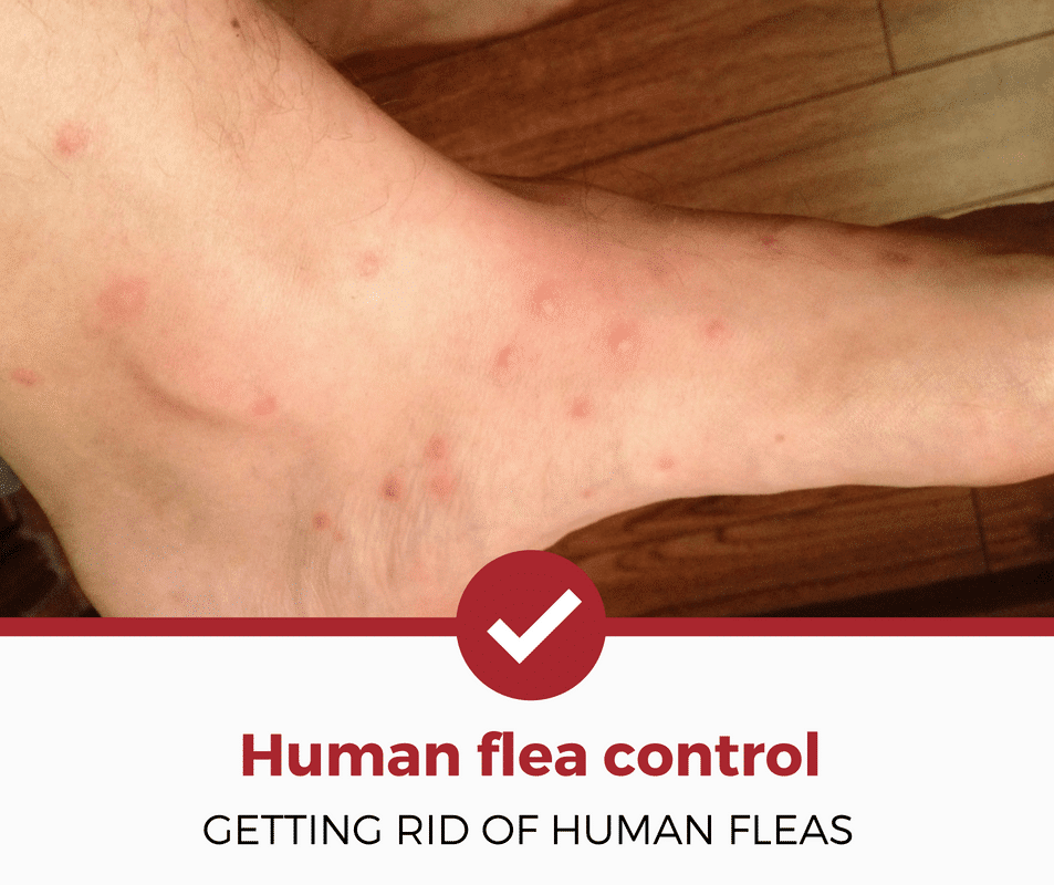 human flea control getting rid of human fleas